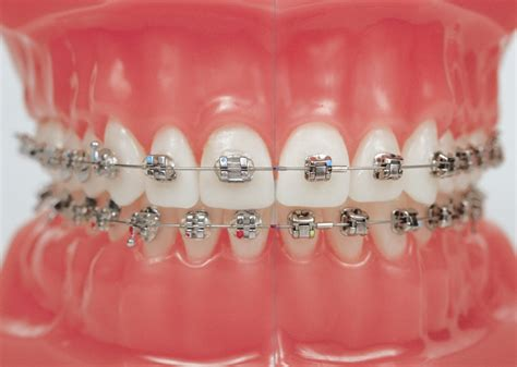 with braces how much do braces cost in the uk the dental guide
