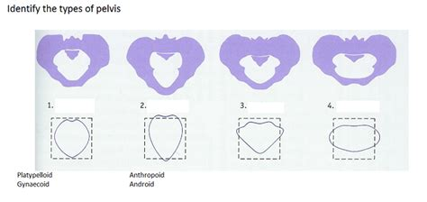 android pelvis mechanisms of labour midwifery bsc intrapartum with various at bournemouth