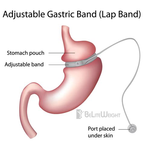 weight loss surgery my gastric band nearly killed me lap band gastric sleeve bypass a history of weight loss