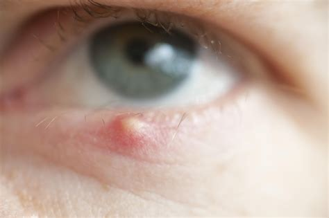 eye stye how to get rid of a stye fast only knew