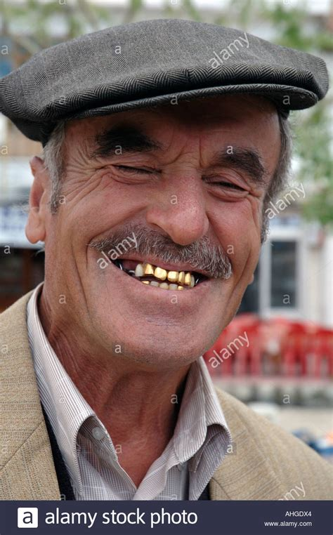 with gold teeth portrait of with gold teeth in in turkey stock photo royalty free image