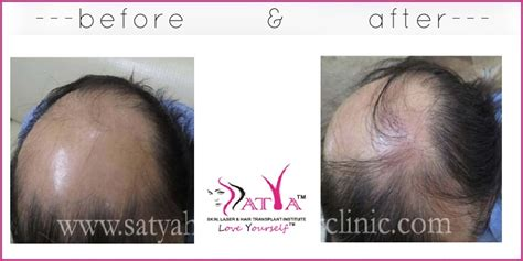reviews on synthetic hair transplant synthetic hair transplant biofibre test patch 100 grafts