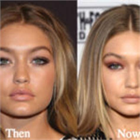 gigi hadid plastic surgery irina shayk plastic surgery before and after photos