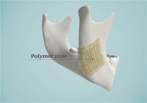 ceramic bone graft 3ders org 3d printed bioceramic implants for bone repair
