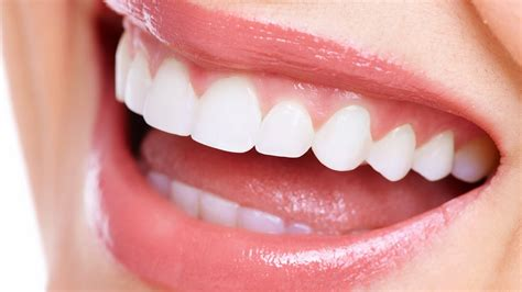 how to straighten teeth without braces 5 ways how to