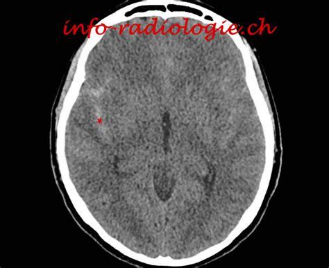 aneurisma carotide interna an 233 vrisme de l 232 re carotide interne