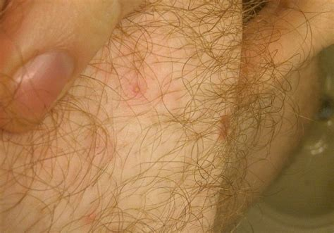 folliculitis cause pubic hair to grow sideways and in layers hair follicles on penis big lady sex