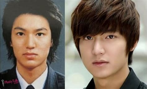 lee seung gi hair loss plastic surgery helped lee min ho become the brightest