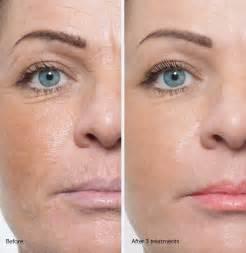 microdermabrasion vorher nachher dermal roller skin cell remodeling peels chicago