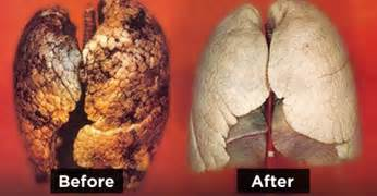 how to purify your lungs in 72 hours world truth tv