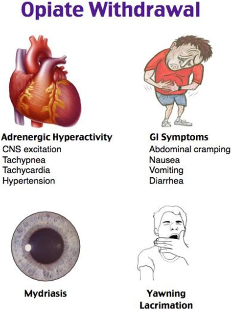 Opiates Detox Recipe by 221 Best Images About Cardiology On