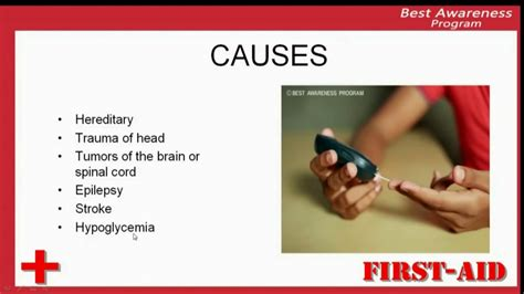 what causes seizures causes of seizures reasons of seazures factors causes seizures