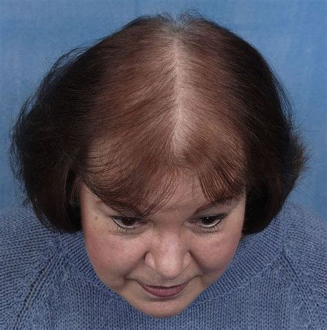 haircuts for extreme hair loss in woman receding hairline women s hair loss how can you help apply infinity hair
