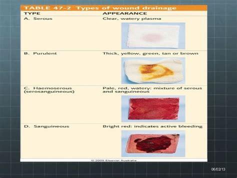 serosanguineous drainage color jp drainage color images search