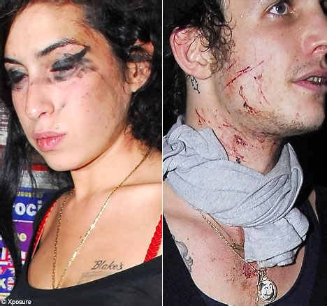 Petes Pipes Detox by Excess Detox Led To Winehouse S Says Photos