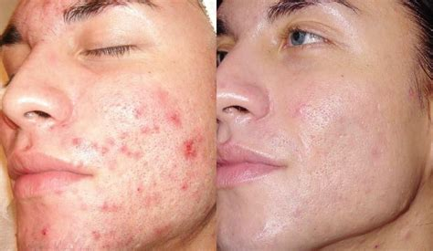 dermabrasion vorher nachher 15 shocking microdermabrasion before and after pictures