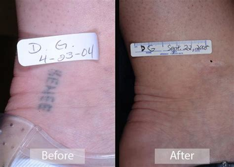 tattoo removal information before after gallery emil a tanghetti md center for