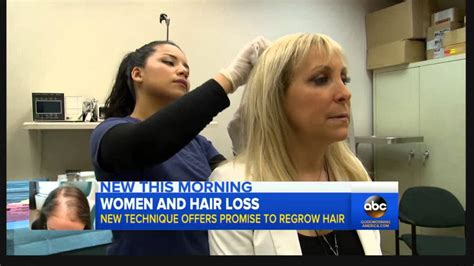 latest news and research on hair loss new research alert hair loss in women video abc news youtube