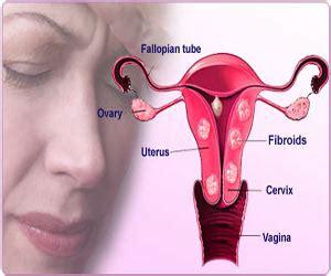 uterine film india uterine fibroids fibroids in uterus causes types