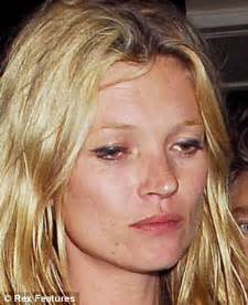 Kate moss the effect of 20 years of drink drugs and partying daily