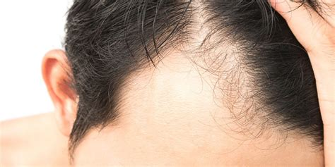 Hairstyles For With Alopecia Areata by Hair Loss Alopecia Areata Treatment Norris Dermatology