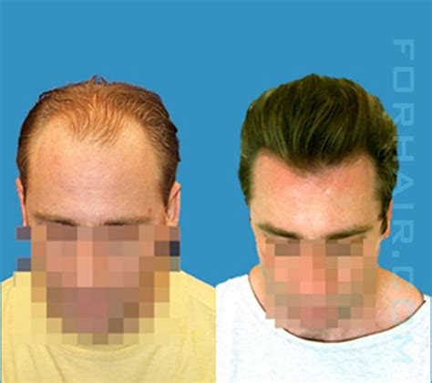 best hairtransplant in the world what are the best results of a hair transplant photo hair