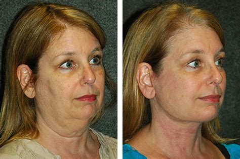mini face lift new york facial plastic surgery facelift photos before and after facelift pictures