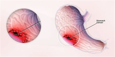 stomach tumor 23 interesting stomach facts function parts diseases organs of the