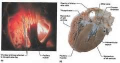 coronal section of heart lab 12 ex 30 32 anatomy of the heart and blood vessels