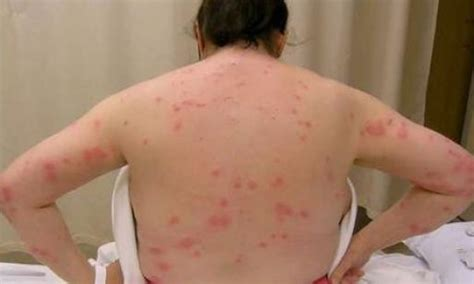 bed bug scars ladybug spray outside ant prevention home remedies get
