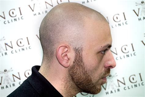 hair tattoo before and after scalp micropigmentation results before and after