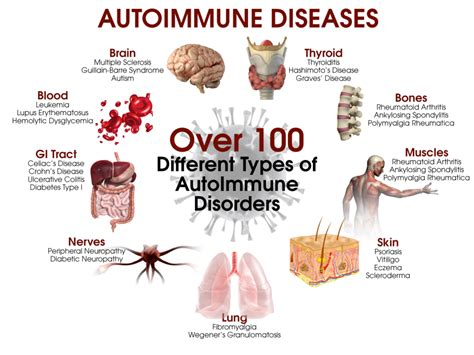 lupus can this autoimmune disease be treated naturally 5 steps to heal autoimmune disease drjockers com