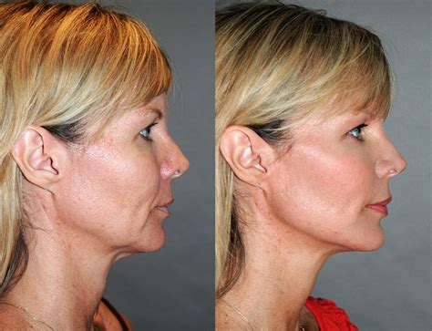 Next Facelift For Your Teeth 2 by Hifu Lift The Next Generation Of Non Surgical