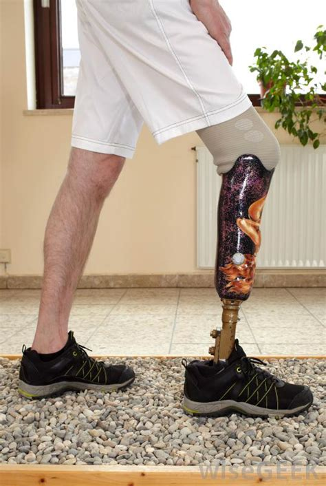 prosthetic leg for what is a prosthetic leg with pictures