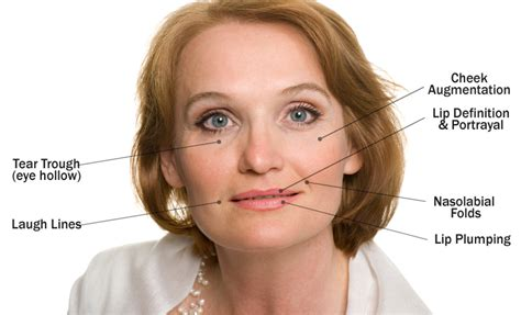 juvederm baltimore md washington dc juvederm