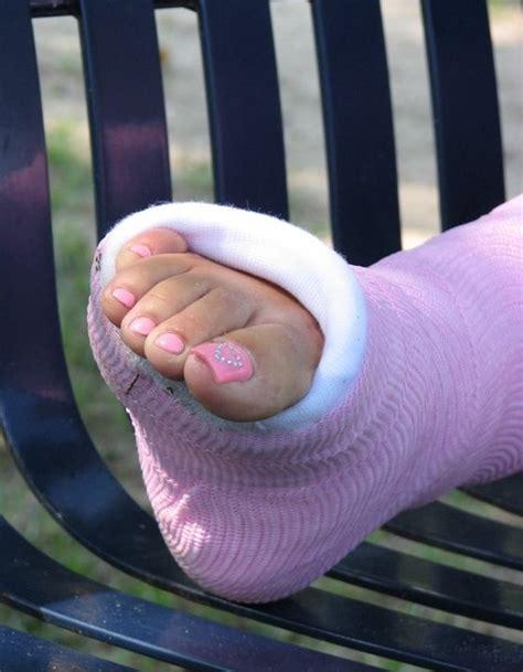 artemide le sur pied amis amies de platre entorses et fractures forum sant 233