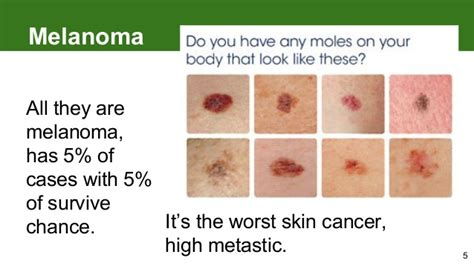 Melanoma How To Detect Skin Cancer