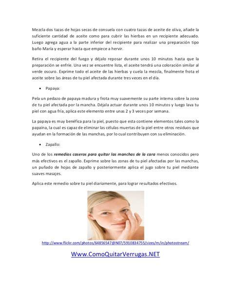 tratamientos tratamientos para las manchas remedios caseros para quitar las manchas de la cara