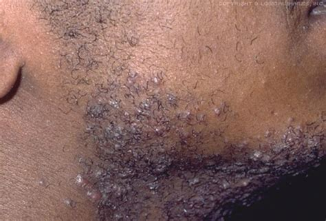 infected hairs on neck electric razor picture of razor bumps