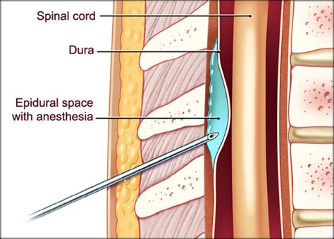 spinal or epidural for planned c section image gallery epidural block