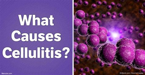What Causes Cellulitis Infection | what causes cellulitis infection