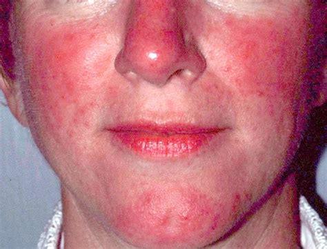 acne rosacea e alimentazione rosacea cause sintomi e cura della patologia