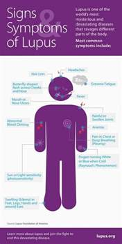 lupus what is it signs and symptoms positivemed