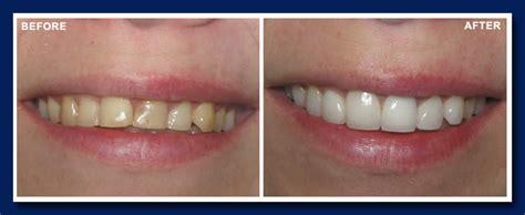 teeth whitening gallery vancouver dentist