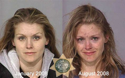 Detox For Heroin Users by Heroin Addict Shocking Before And After Photos New