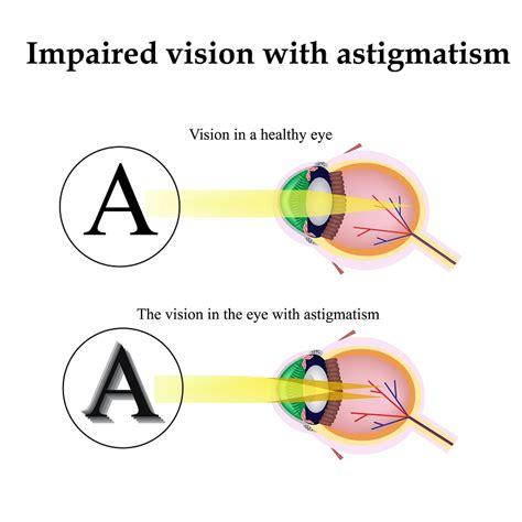 can my eyesight get better toric lens implants and astigmatism grosinger spigelman