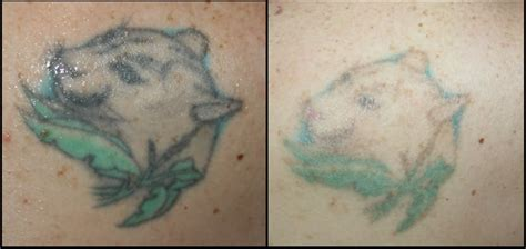 tattoo removal monterey related keywords suggestions for ipl removal