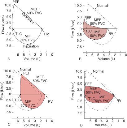 Loop Merk Image airflow lung volumes and flow volume loop pulmonary