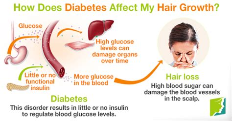 Hair Loss Diabetes Type 2 by Faqs How Does Diabetes Affect My Hair Growth
