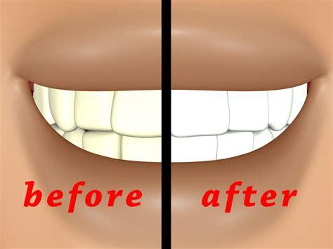 ways   whiter teeth  home wikihow